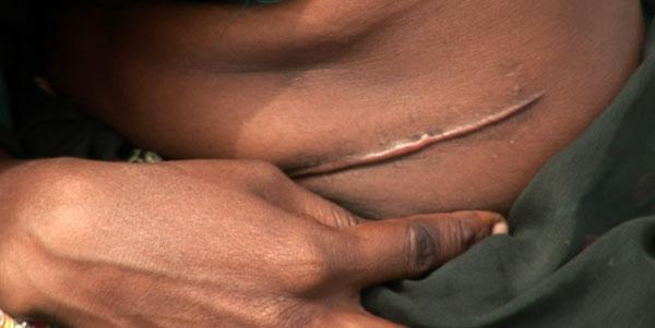 precios de órganos en el mercado negro: 15.000 dólares por riñón y 37.000 dólares por parte del hígado de un donante vivo